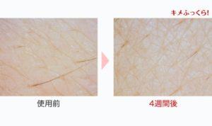 アンプルール 美容乳液ゲルの美肌効果